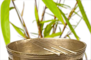 Acupuncture in West Palm Beach